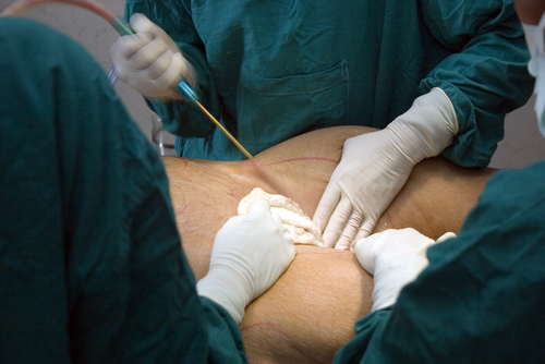 liposuction and metabolic syndrome