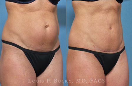 abdominoplasty-03b-wm