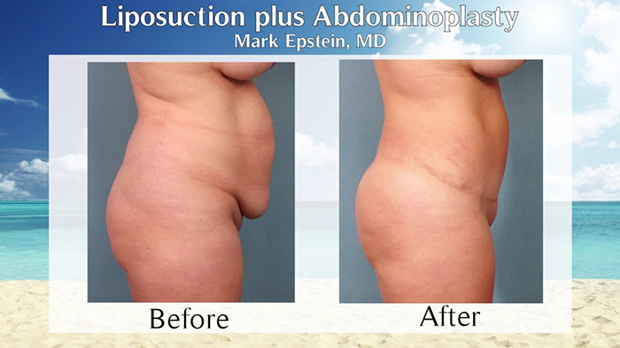 abdominoplasty with liposuction before and after