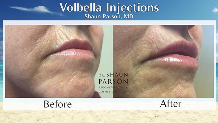 Volbella injection before and afters.