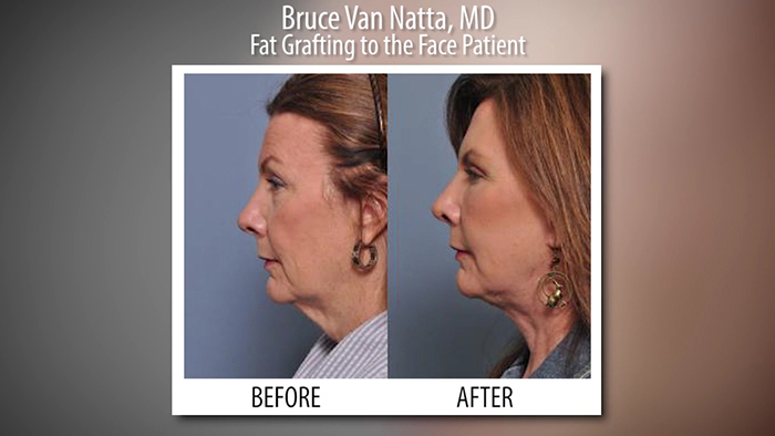 Fat injections before and afters.