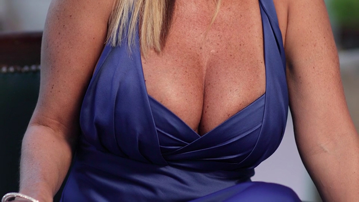 Breast reduction patient.