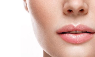 Augmenting the lips with lip filler.