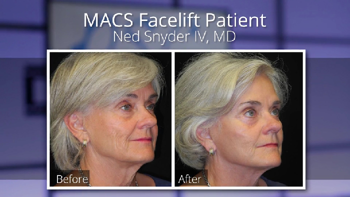 MACS facelift - Dr. Snyder before and afters.