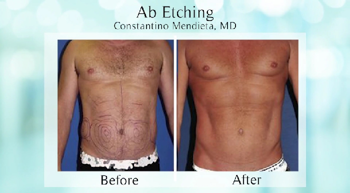 Ab etching before and after.