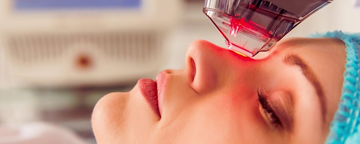 Facial rejuvenation - #4 resurfacing.
