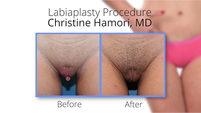 Vaginal rejuvenation - Dr. Hamori before and after.