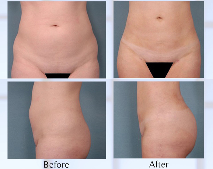 Liposculpture before and after.
