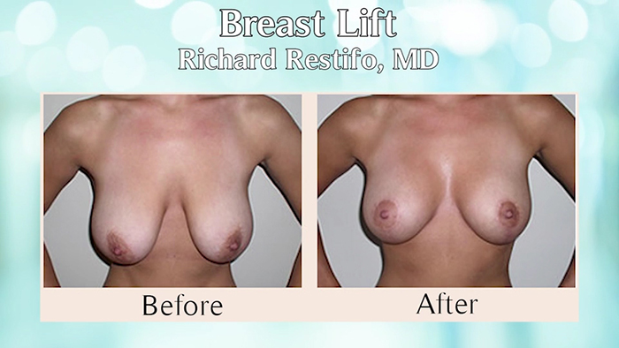 Breast revision before and after.