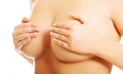 Breast surgery revision.