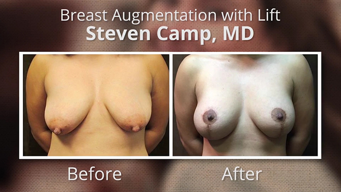 Breast lift with implants - before and after.