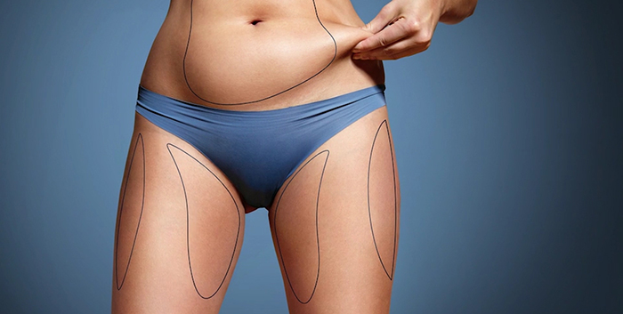 Liposculpture - sculpting the body with liposuction.