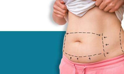 TissuGlu and a drainless tummy tuck.