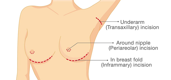 Breast augmentation incisions.
