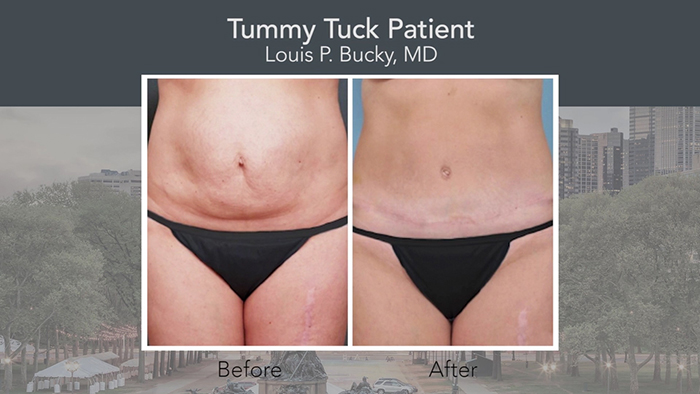 Improved tummy tuck before and after.