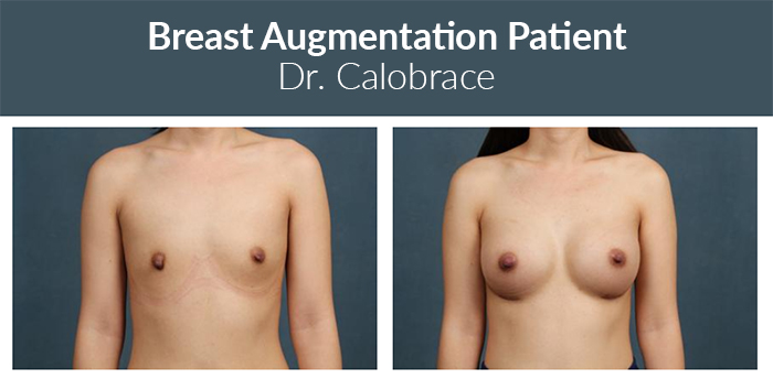 Fat grafting breast aug before and after.