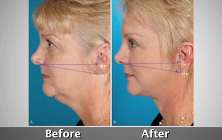 Facelift-before-and-after