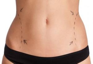 Laser-Liposuction