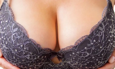 Breast augmentation revision.