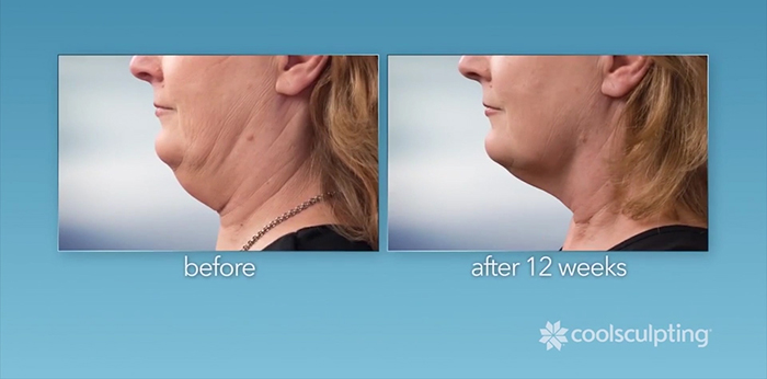 coolsculpting coolmini before and after