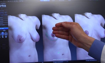 imaging breast augmentation in 3D for proper size selection