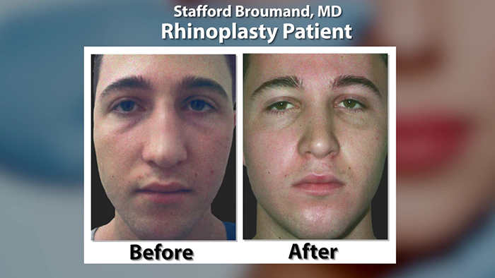 Dr. Stafford Broumand - Nose Job Before and After