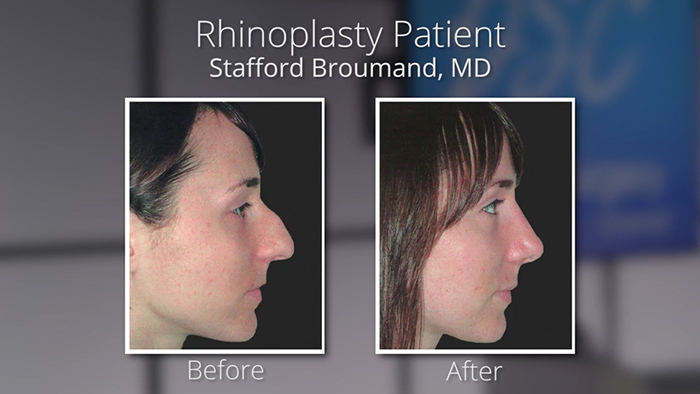 Staffound Broumand - Nose job before and afters.