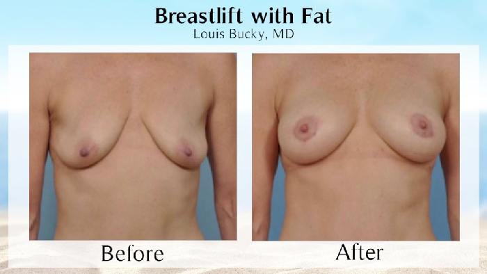 Fat grafting to the breast before and after.