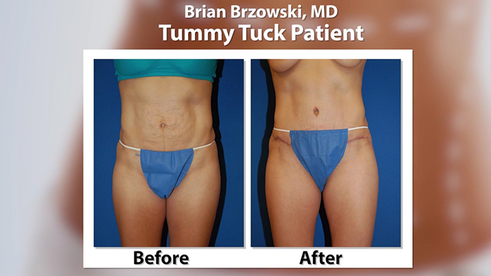 Mommy makeover - Dr. Brzowski before and after.