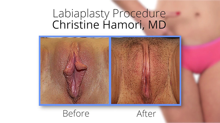 Vaginal rejuvenation - before and after.