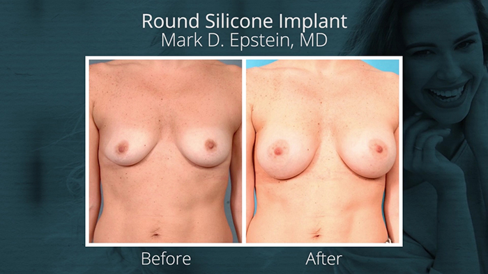 Round silicone breast implant before and after.