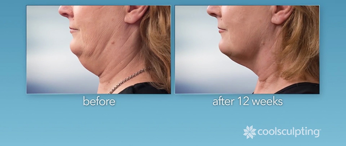 CoolSculpting before and after - neck.