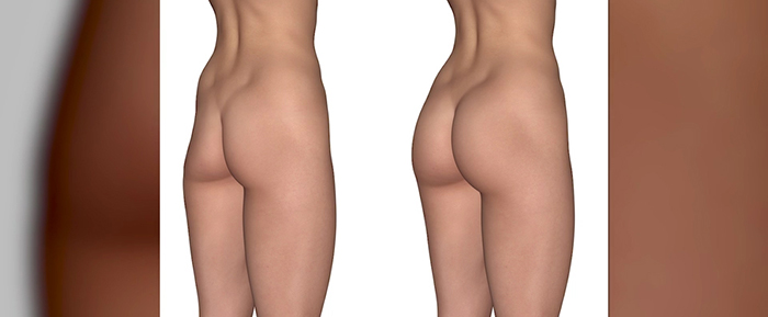 Contour reshaping with buttock augmentation.