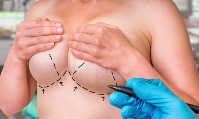 Breast Revision - It's More Complicated the Second Time Around.