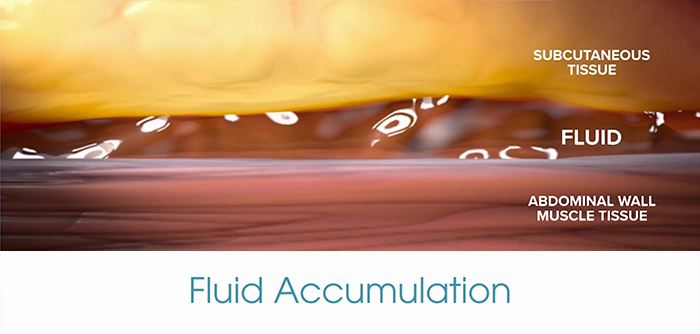 Avoiding fluid accumulation with a drainless tummy tuck.