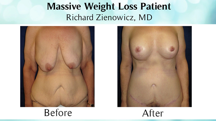 Massive weight loss patient - before and after.