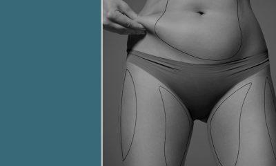 Keys to ensuring successful liposuction.