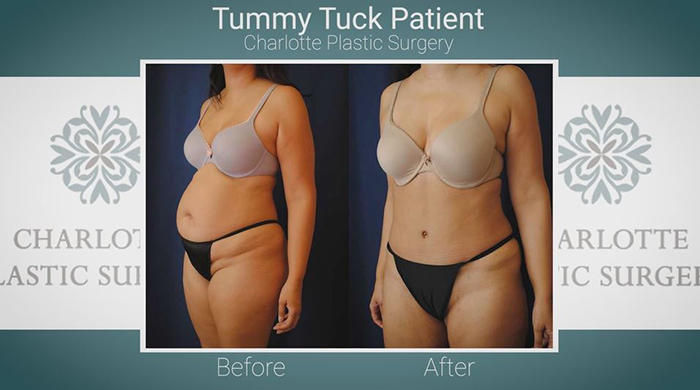Drainless tummy tuck results.