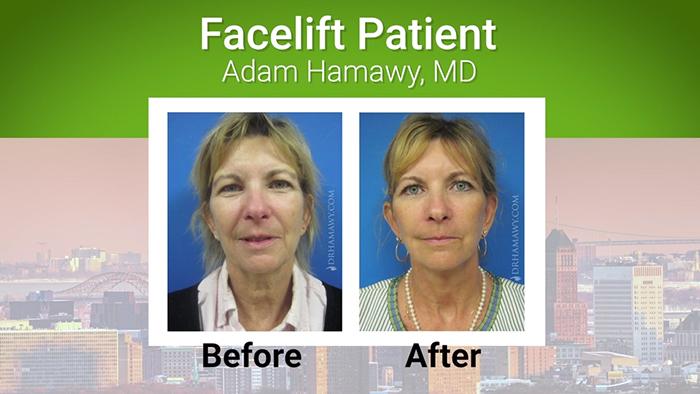 Facelift patient - Dr. Hamawy.
