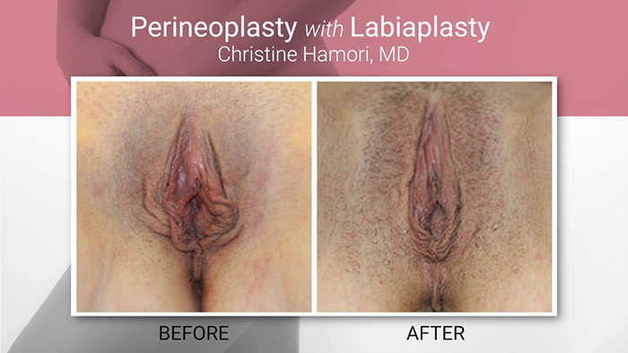 Perineoplasty results.