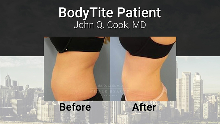BodyTite results - Dr. Cook.