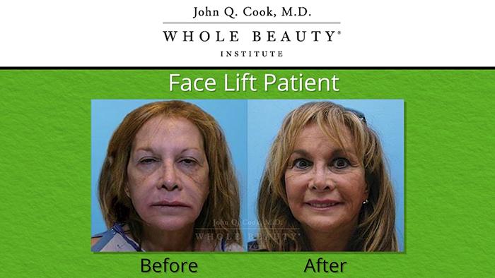 Facelift results - John Q. Cook.
