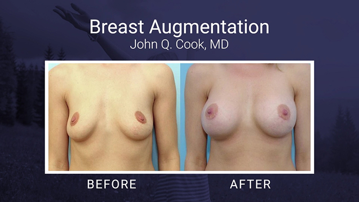 Breast Augmentation Before and Afters - Cook