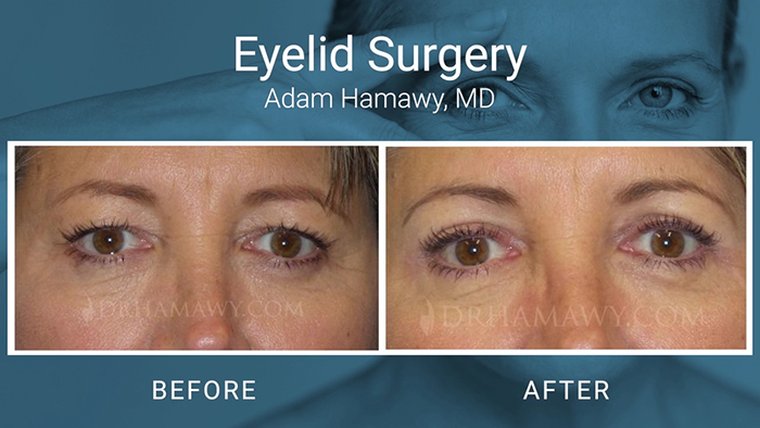 Eyelid surgery patient - Hamawy.