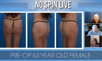 No Spin Live Episode 85 - Older Patient Buttock Augmentation Case